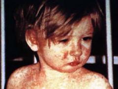 Masern-Impfung bleibt auch hier ein Thema